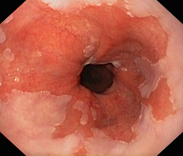 Image Gallery Launceston Gastroenterology Dr Scott Fanning