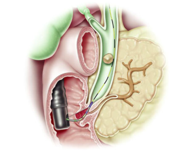 Stone within common bile duct - courtesy ASGE.org